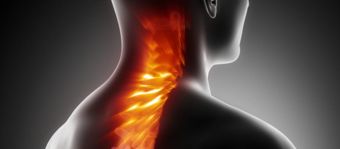 Cerviokobrahialni sindrom